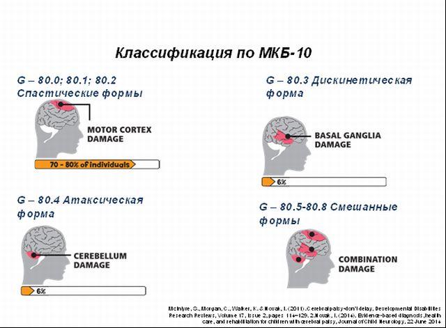 классификация форм ДЦП по МКБ-10
